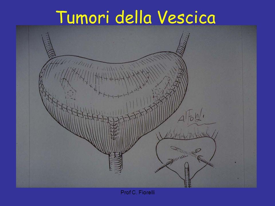 Tumori della Vescica Prof C. Fiorelli 20