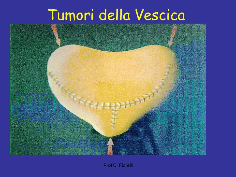 Tumori della Vescica Prof C. Fiorelli 21
