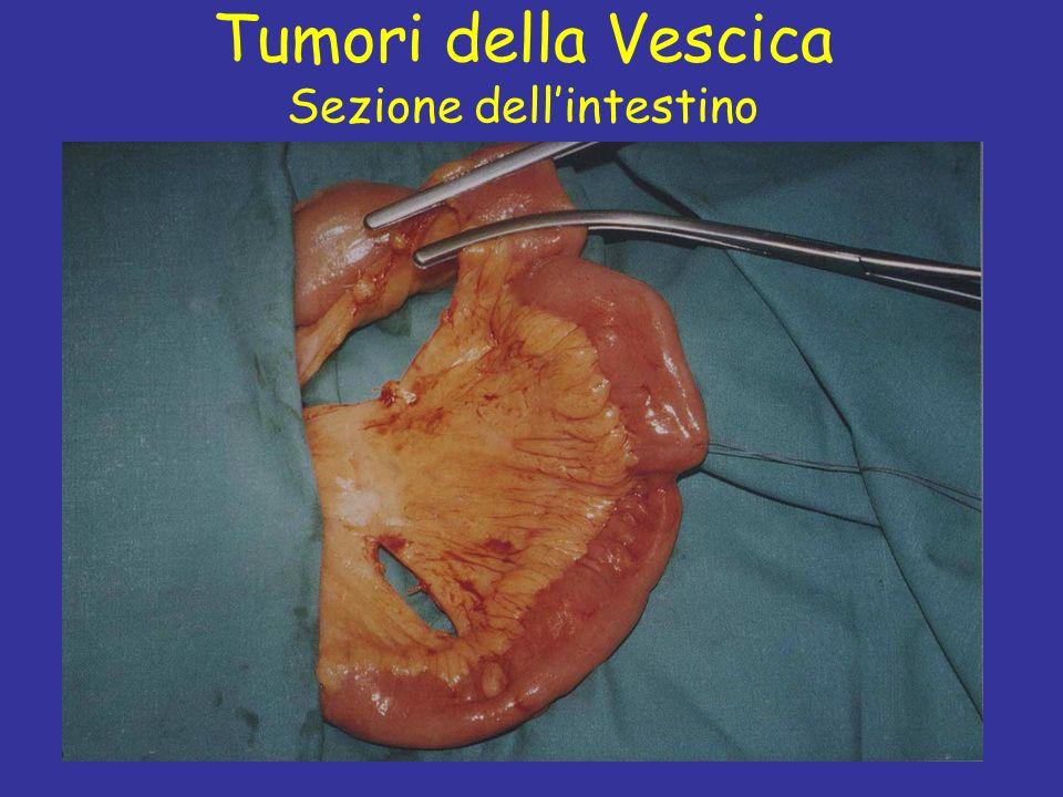 Tumori della Vescica Sezione dell'intestino