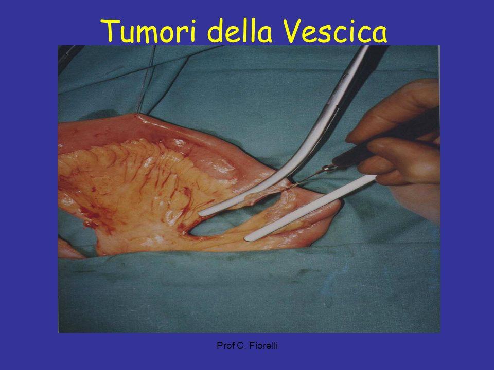 Tumori della Vescica Prof C. Fiorelli 38