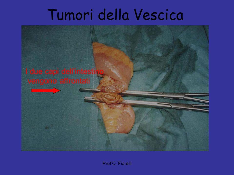 Tumori della Vescica I due capi dell'intestino vengono affrontati