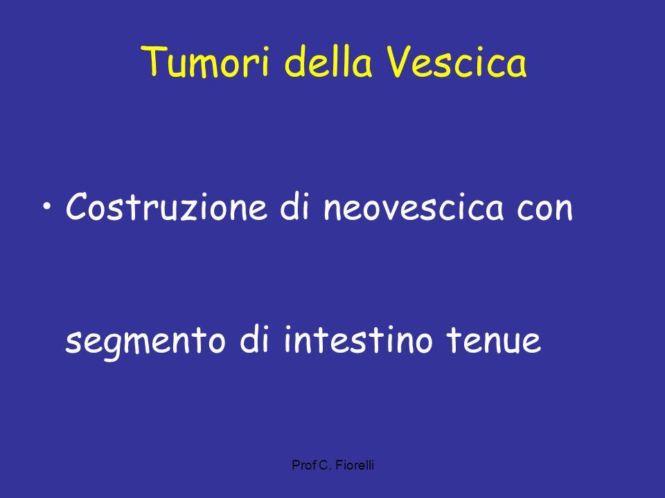 Tumori della Vescica Costruzione di neovescica con segmento di intestino tenue Prof C. Fiorelli 48