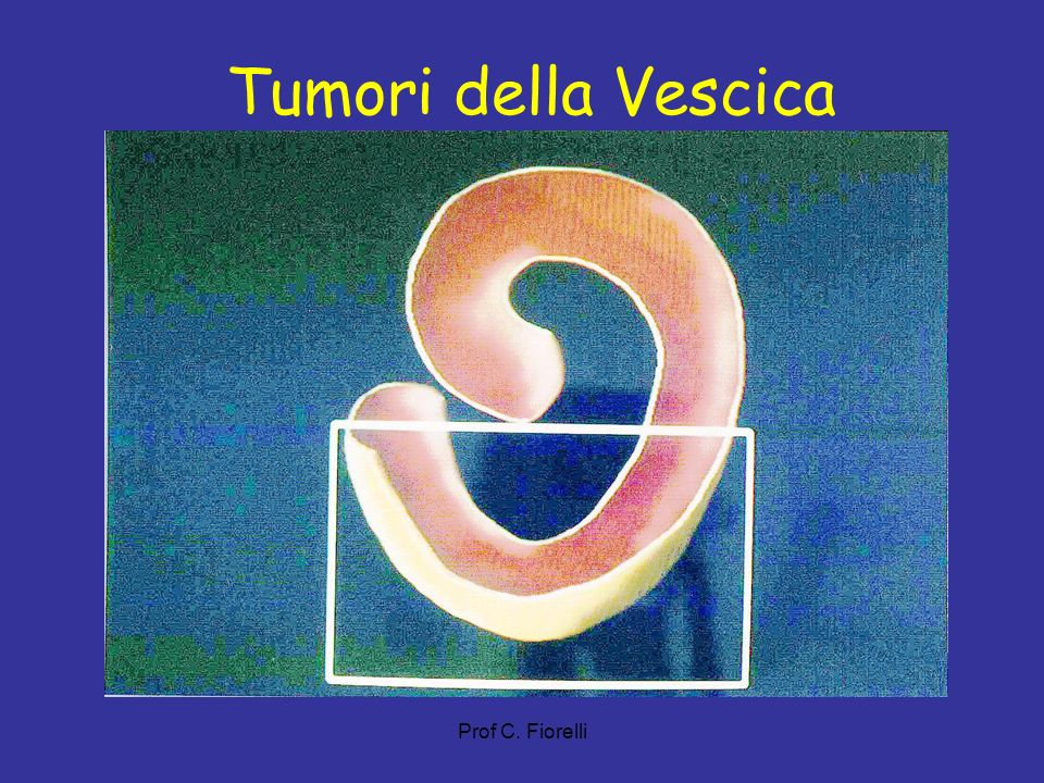 Tumori della Vescica Prof C. Fiorelli 51