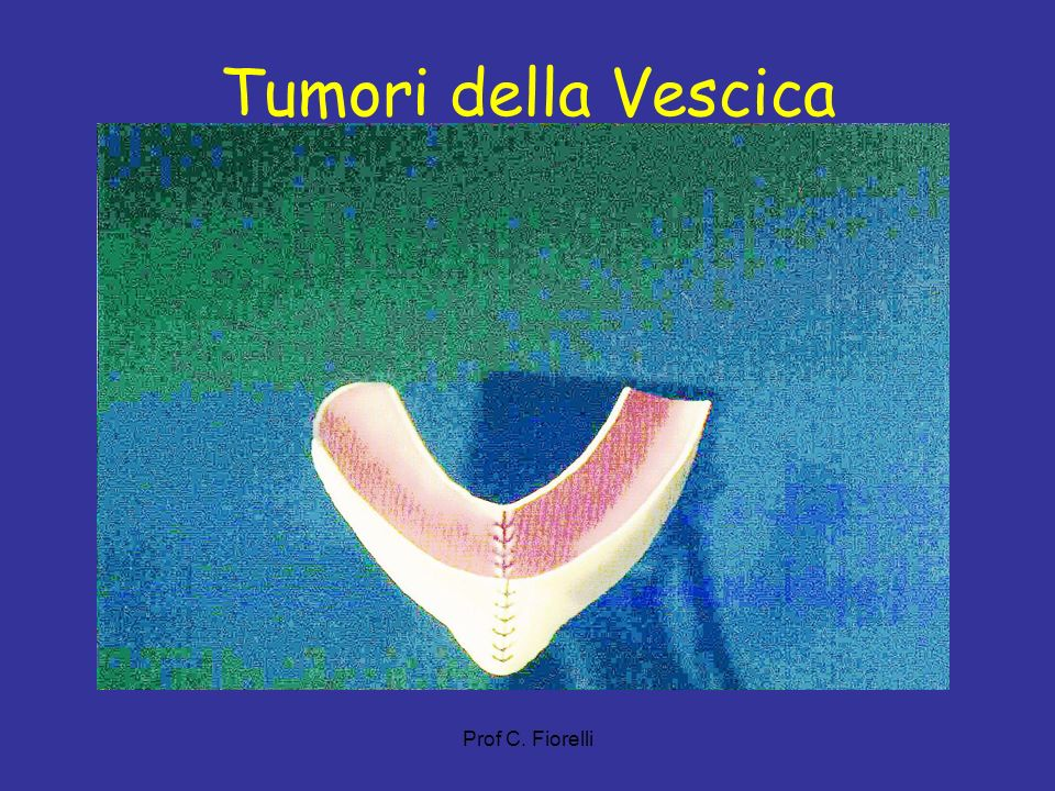 Tumori della Vescica Prof C. Fiorelli 52
