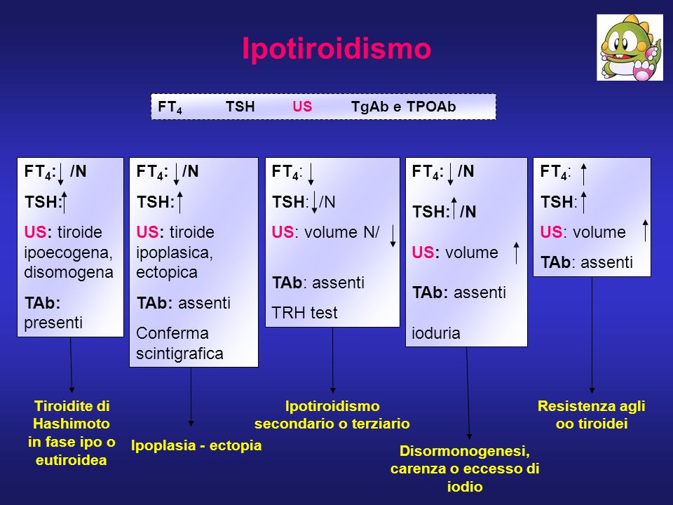 Ipotiroidismo FT4: /N TSH: US: tiroide ipoecogena, disomogena