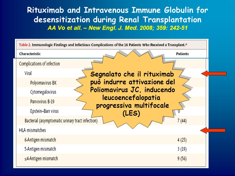 Rituximab and Intravenous Immune Globulin for desensitization during Renal Transplantation AA Vo et all. – New Engl. J. Med. 2008; 359: 242-51