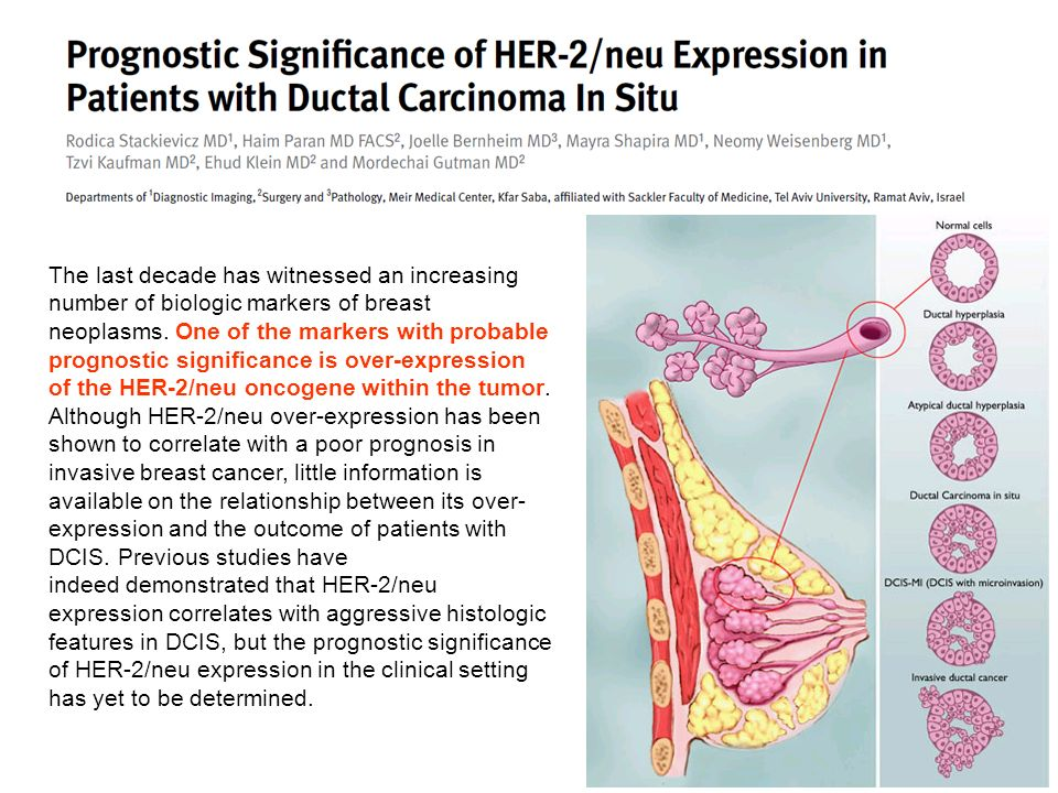The last decade has witnessed an increasing number of biologic markers of breast neoplasms. One of the markers with probable prognostic significance is over-expression of the HER-2/neu oncogene within the tumor. Although HER-2/neu over-expression has been shown to correlate with a poor prognosis in invasive breast cancer, little information is available on the relationship between its over-expression and the outcome of patients with DCIS. Previous studies have