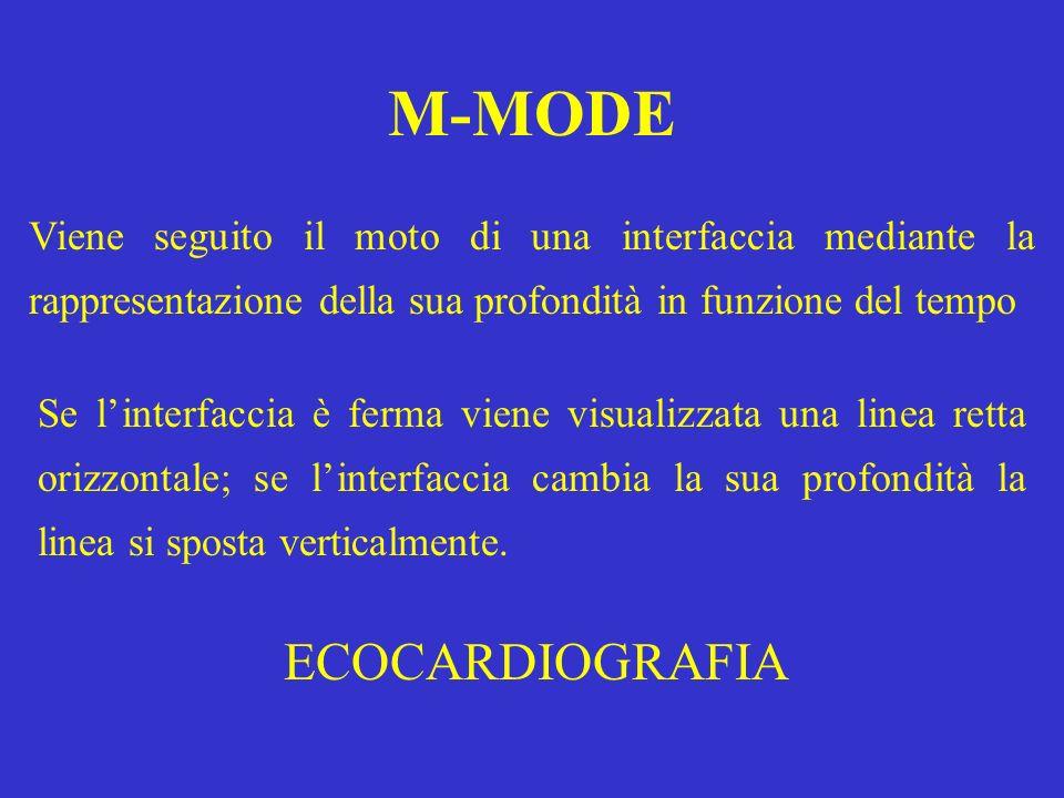 M-MODE ECOCARDIOGRAFIA