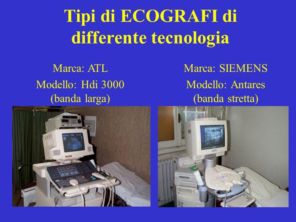 Tipi di ECOGRAFI di differente tecnologia
