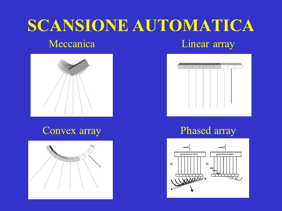 SCANSIONE AUTOMATICA Meccanica Linear array Convex array Phased array