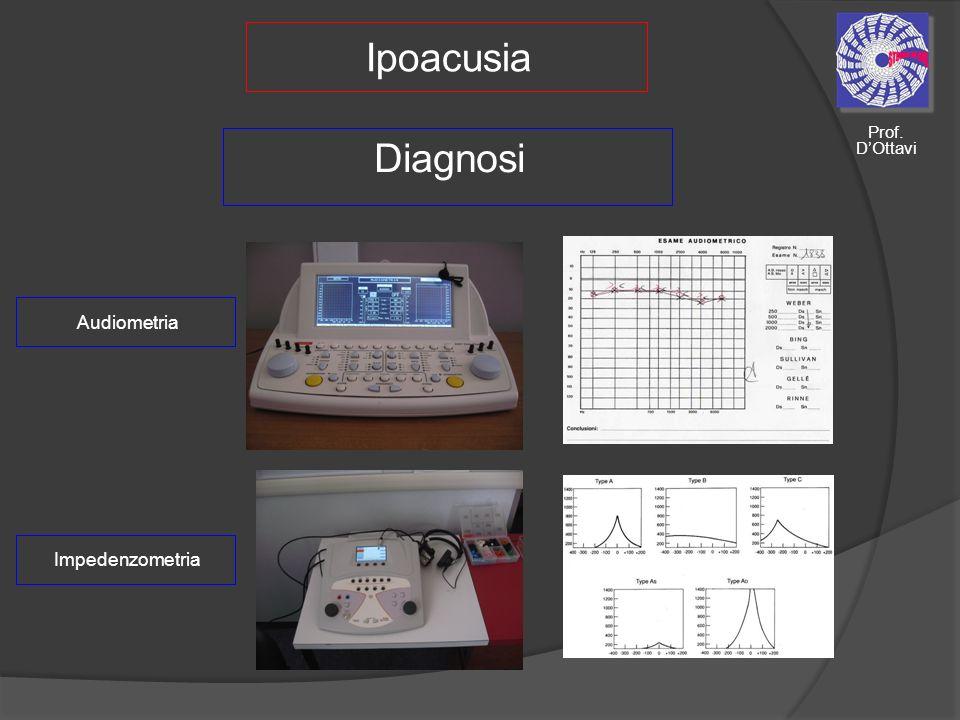 Ipoacusia Prof. D'Ottavi Diagnosi Audiometria Impedenzometria