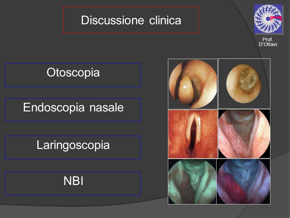 Discussione clinica Otoscopia Endoscopia nasale Laringoscopia NBI