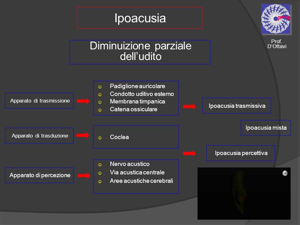 Ipoacusia Diminuizione parziale dell'udito Padiglione auricolare
