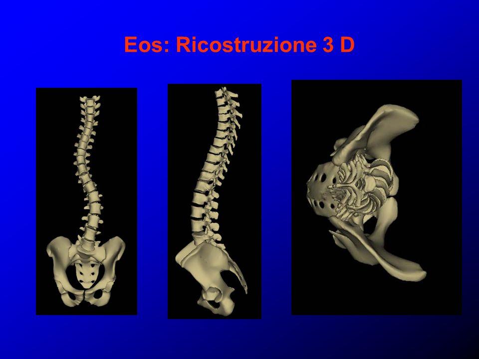 Eos: Ricostruzione 3 D