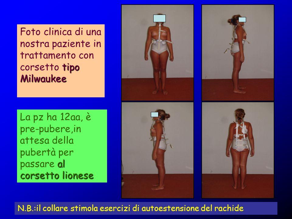 Foto clinica di una nostra paziente in trattamento con corsetto tipo Milwaukee