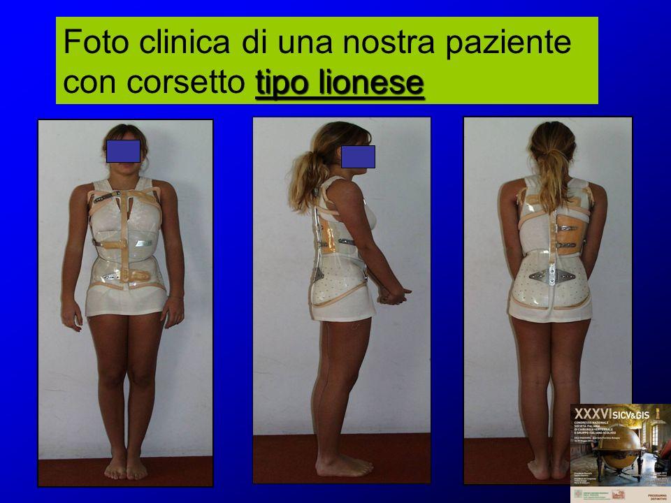 Foto clinica di una nostra paziente con corsetto tipo lionese