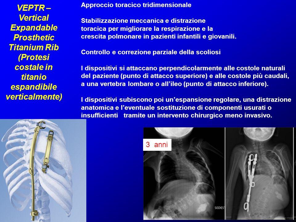 VEPTR – Vertical Expandable Prosthetic Titanium Rib