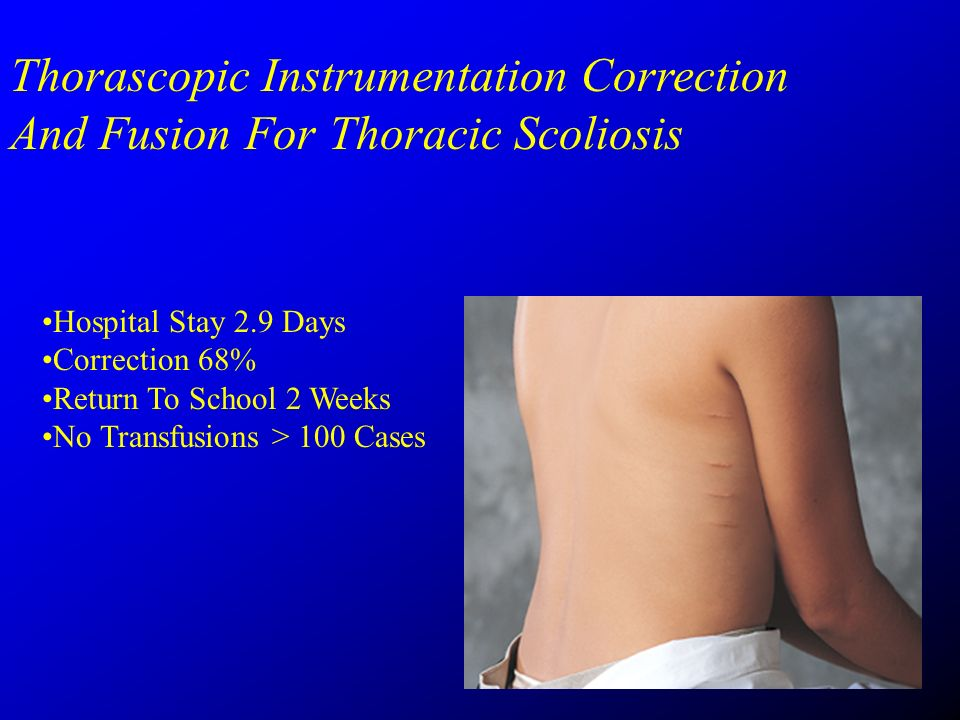 Thorascopic Instrumentation Correction And Fusion For Thoracic Scoliosis