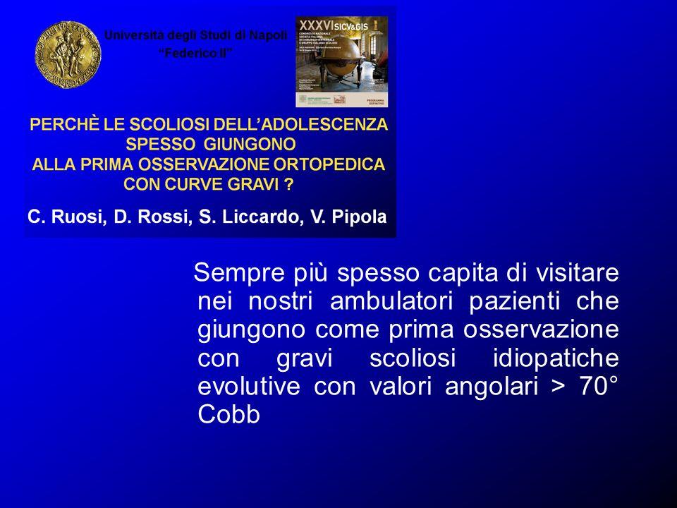 Sempre più spesso capita di visitare nei nostri ambulatori pazienti che giungono come prima osservazione con gravi scoliosi idiopatiche evolutive con valori angolari > 70° Cobb