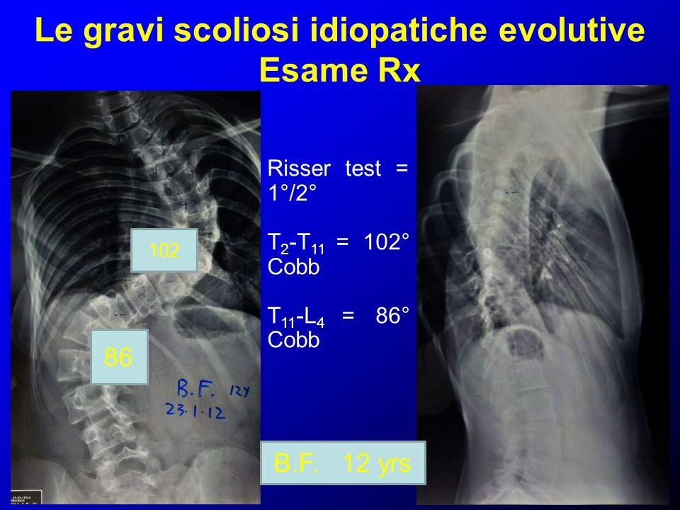 Le gravi scoliosi idiopatiche evolutive Esame Rx