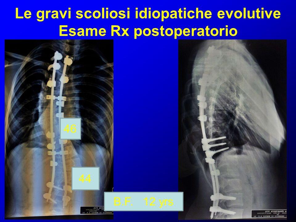 Le gravi scoliosi idiopatiche evolutive Esame Rx postoperatorio