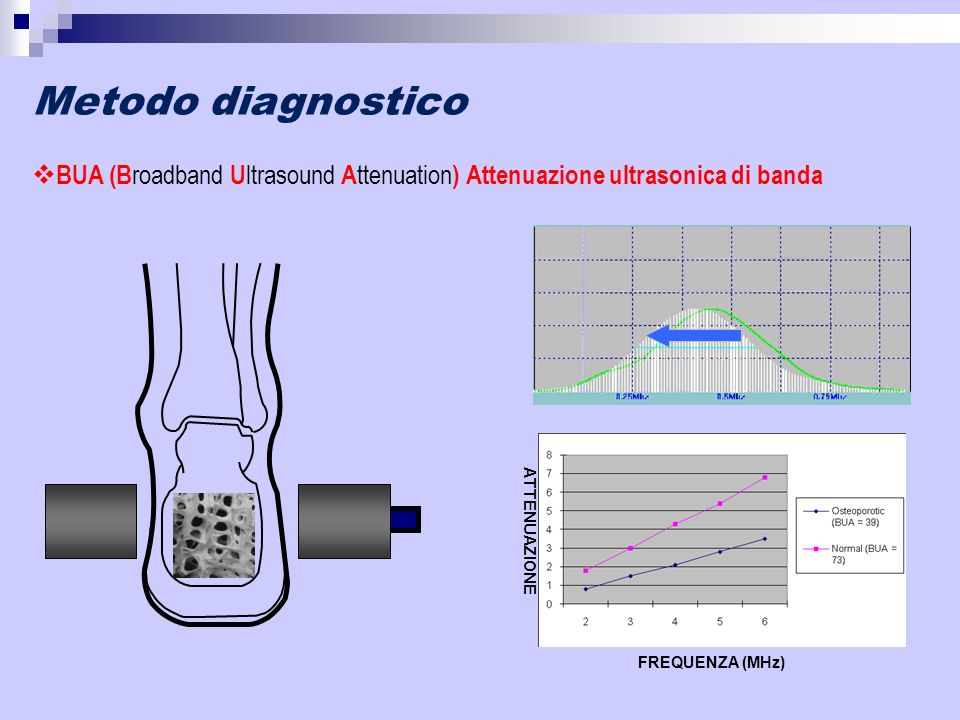 Metodo diagnostico BUA (Broadband Ultrasound Attenuation) Attenuazione ultrasonica di banda. FREQUENZA (MHz)