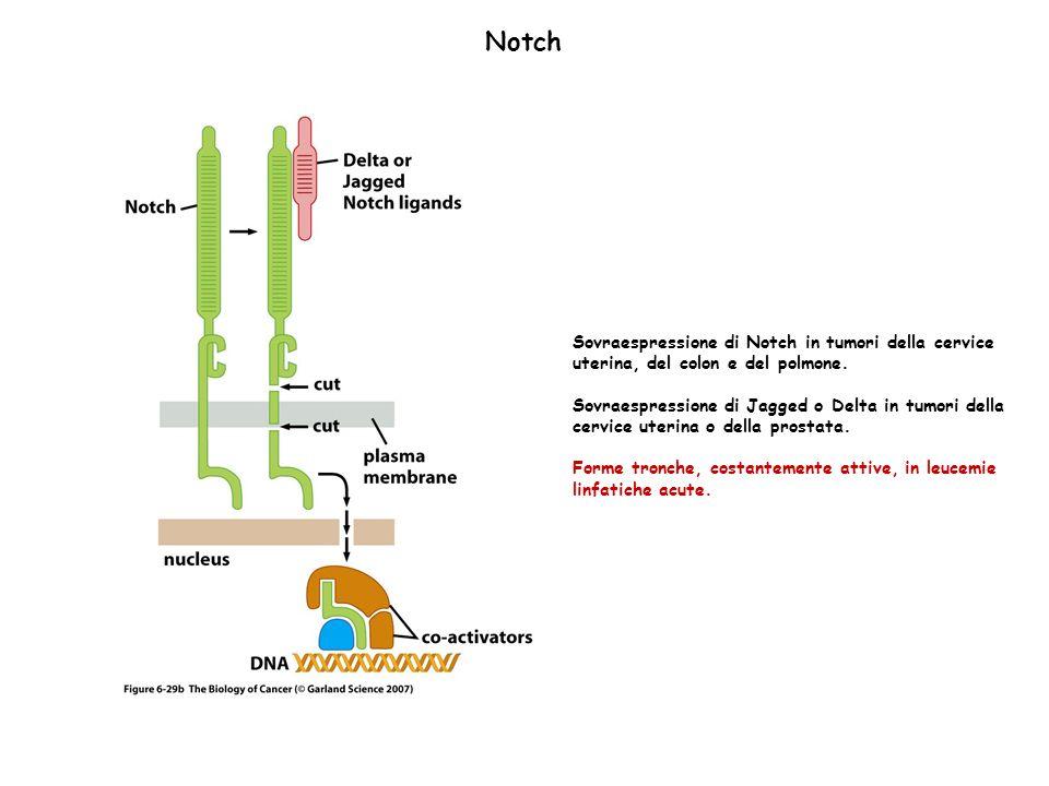Notch Sovraespressione di Notch in tumori della cervice