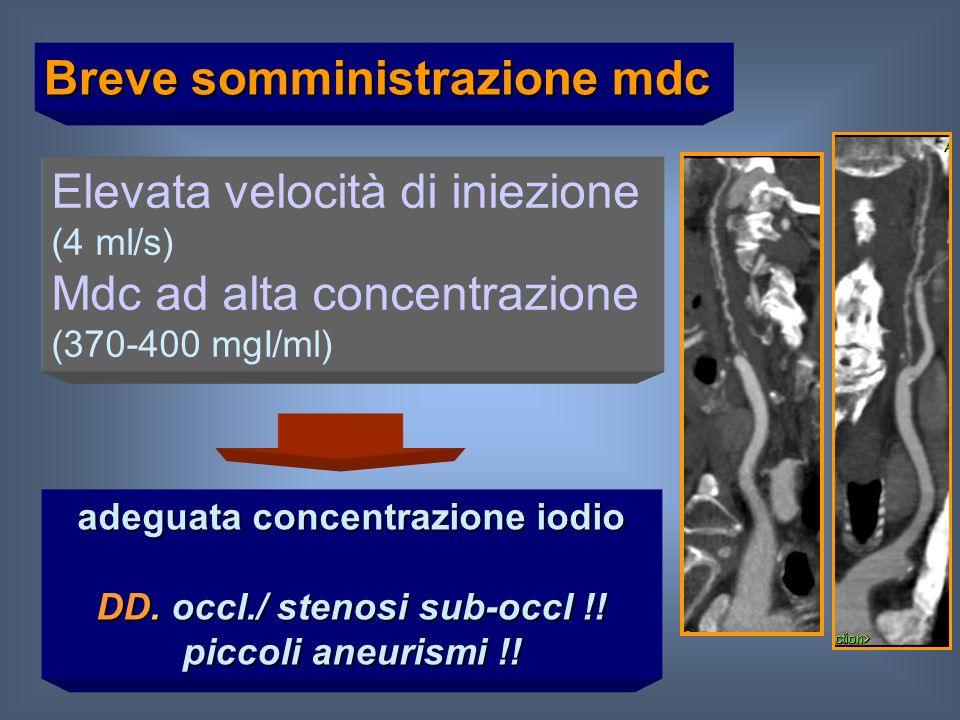 adeguata concentrazione iodio DD. occl./ stenosi sub-occl !!