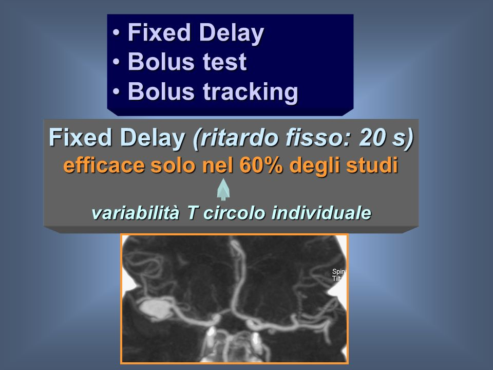 Fixed Delay (ritardo fisso: 20 s)
