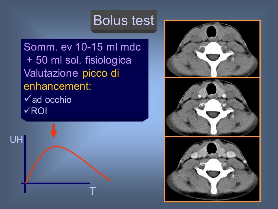 Bolus test Somm. ev 10-15 ml mdc + 50 ml sol. fisiologica