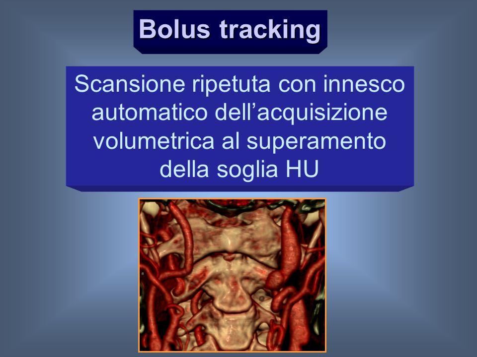Bolus tracking Scansione ripetuta con innesco automatico dell'acquisizione volumetrica al superamento della soglia HU.