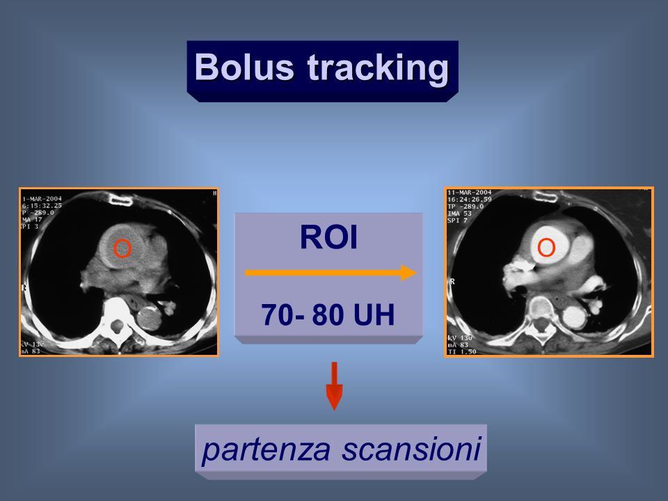 Bolus tracking ROI 70- 80 UH O O partenza scansioni