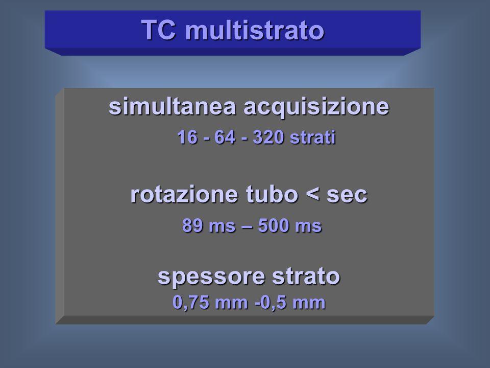 simultanea acquisizione rotazione tubo < sec