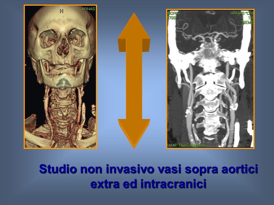 Studio non invasivo vasi sopra aortici