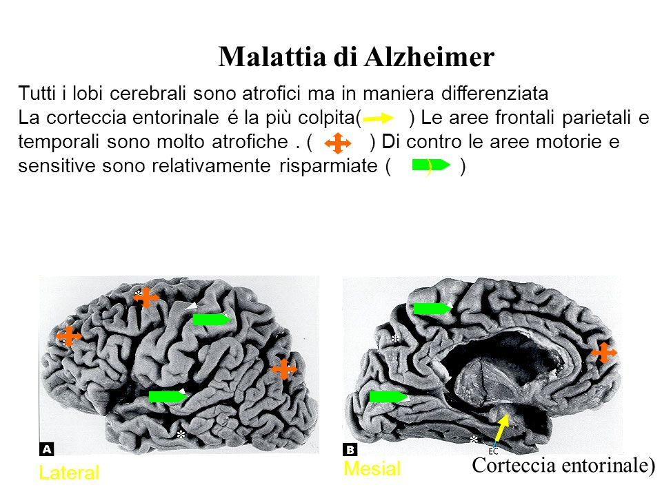 Malattia di Alzheimer ) Corteccia entorinale)