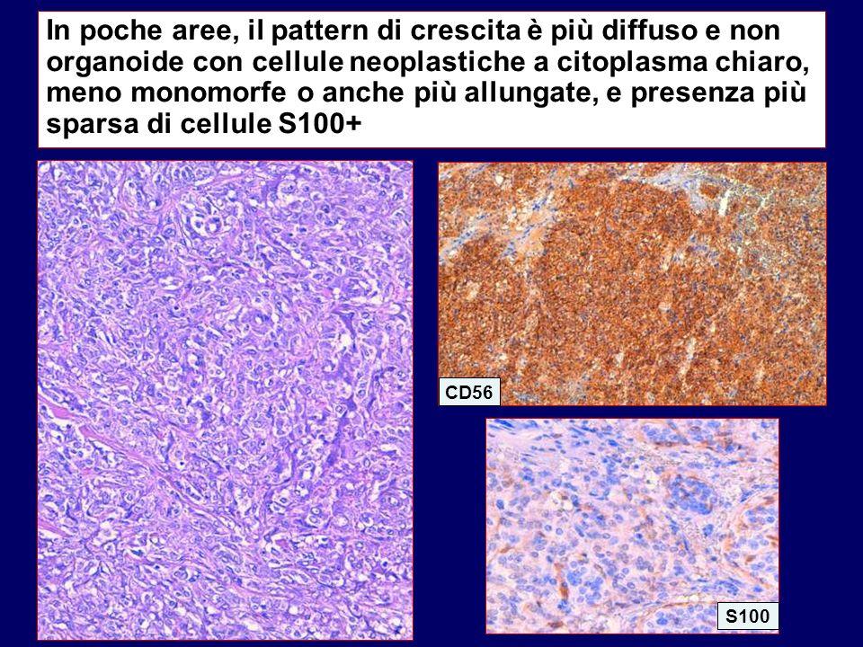 In poche aree, il pattern di crescita è più diffuso e non organoide con cellule neoplastiche a citoplasma chiaro, meno monomorfe o anche più allungate, e presenza più sparsa di cellule S100+