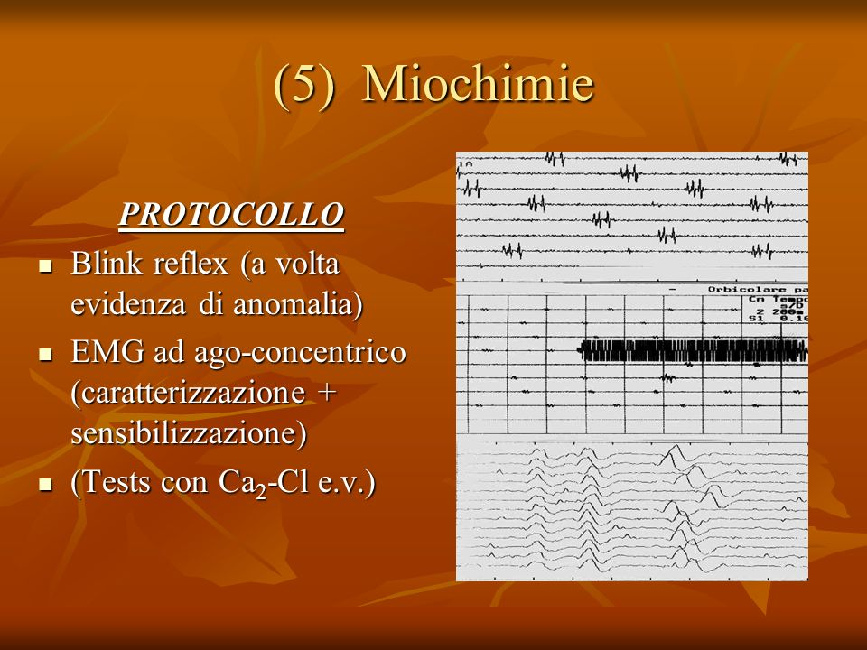 (5) Miochimie PROTOCOLLO Blink reflex (a volta evidenza di anomalia)