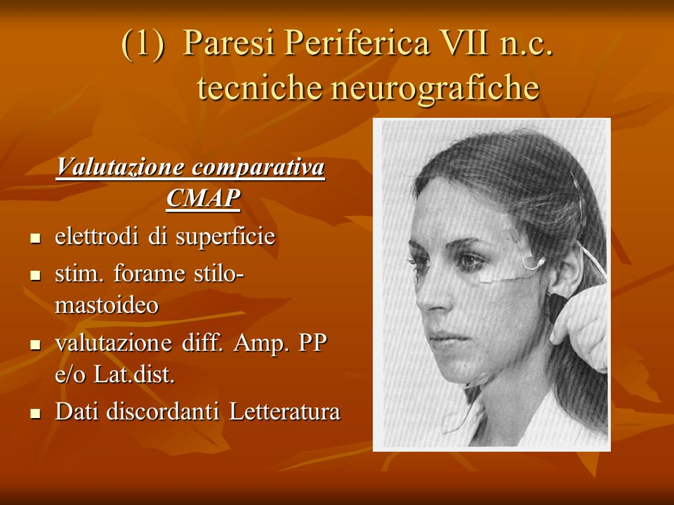 Paresi Periferica VII n.c. tecniche neurografiche
