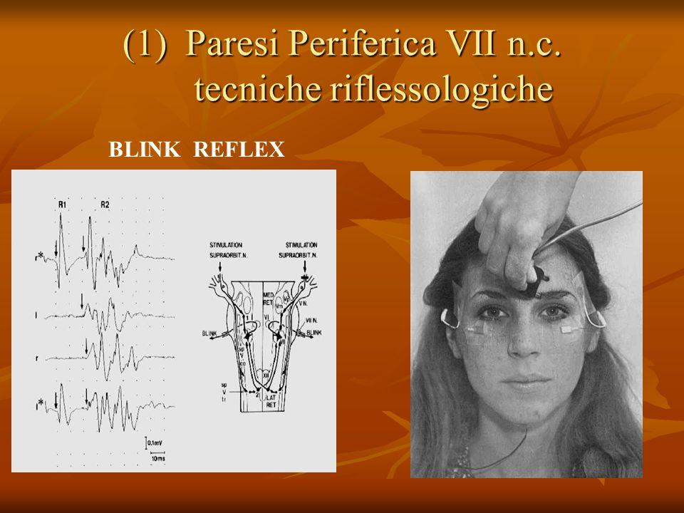 Paresi Periferica VII n.c. tecniche riflessologiche