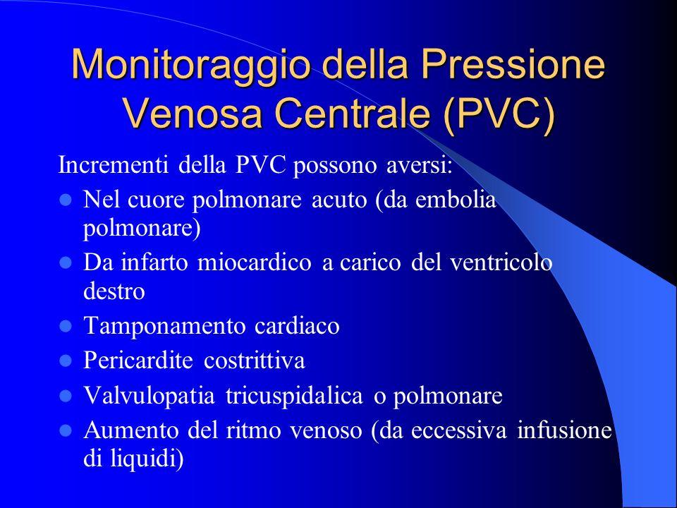 Monitoraggio della Pressione Venosa Centrale (PVC)
