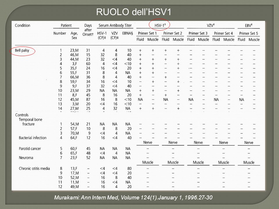 RUOLO dell'HSV1 Murakami: Ann Intern Med, Volume 124(1).January 1, 1996.27-30