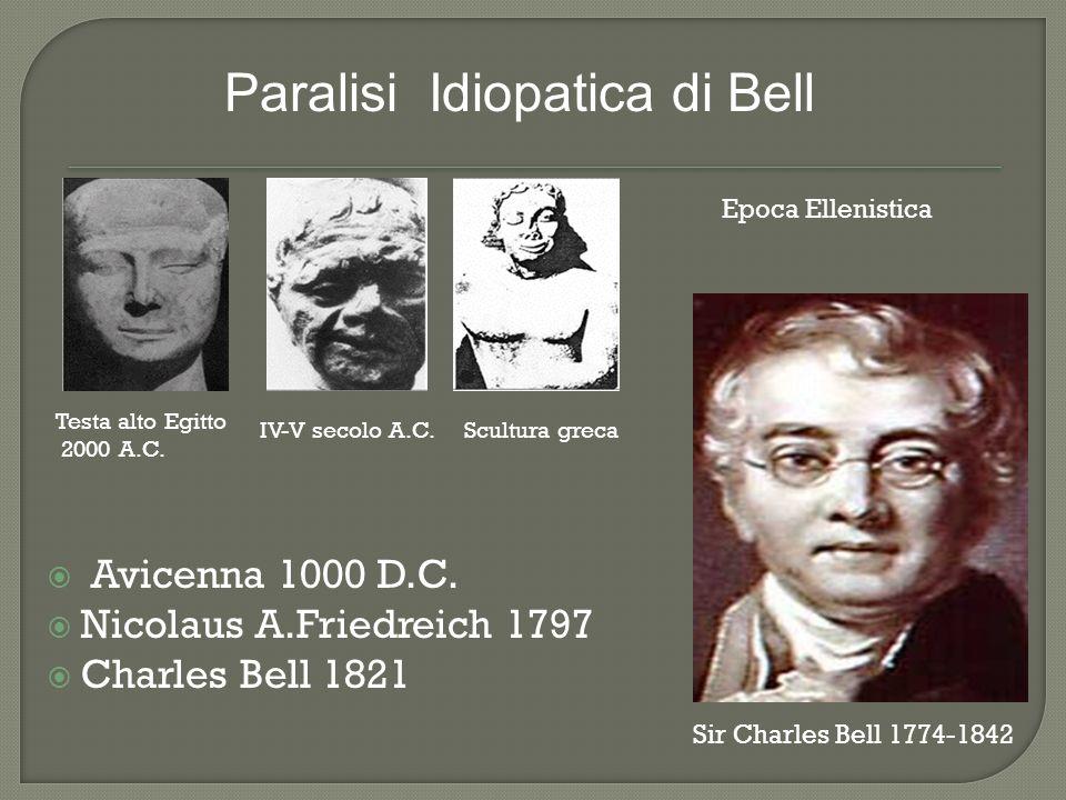 Paralisi Idiopatica di Bell