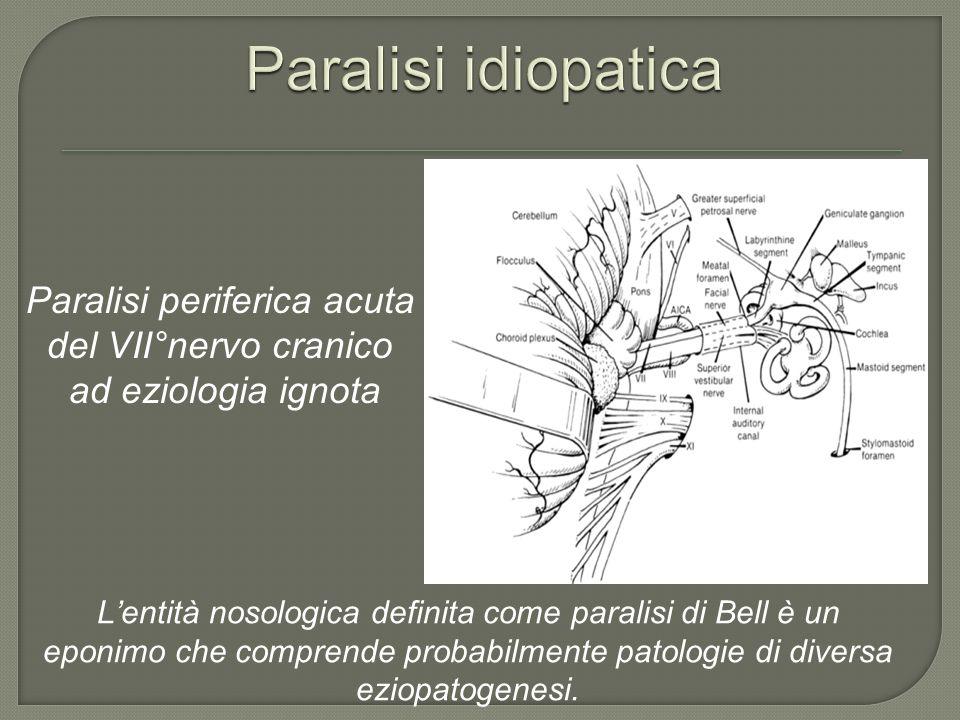 Paralisi periferica acuta del VII°nervo cranico ad eziologia ignota