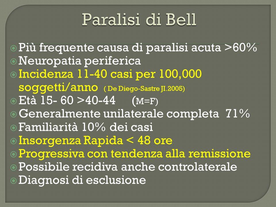 Paralisi di Bell Più frequente causa di paralisi acuta >60%