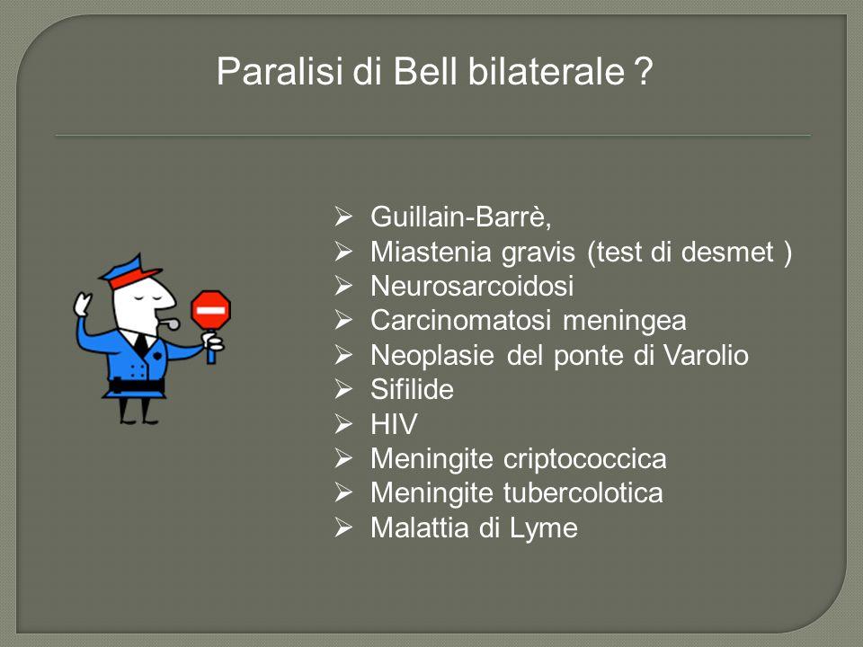 Paralisi di Bell bilaterale