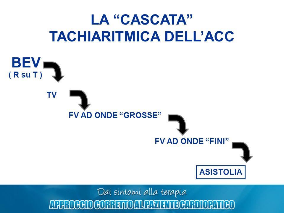 TACHIARITMICA DELL'ACC