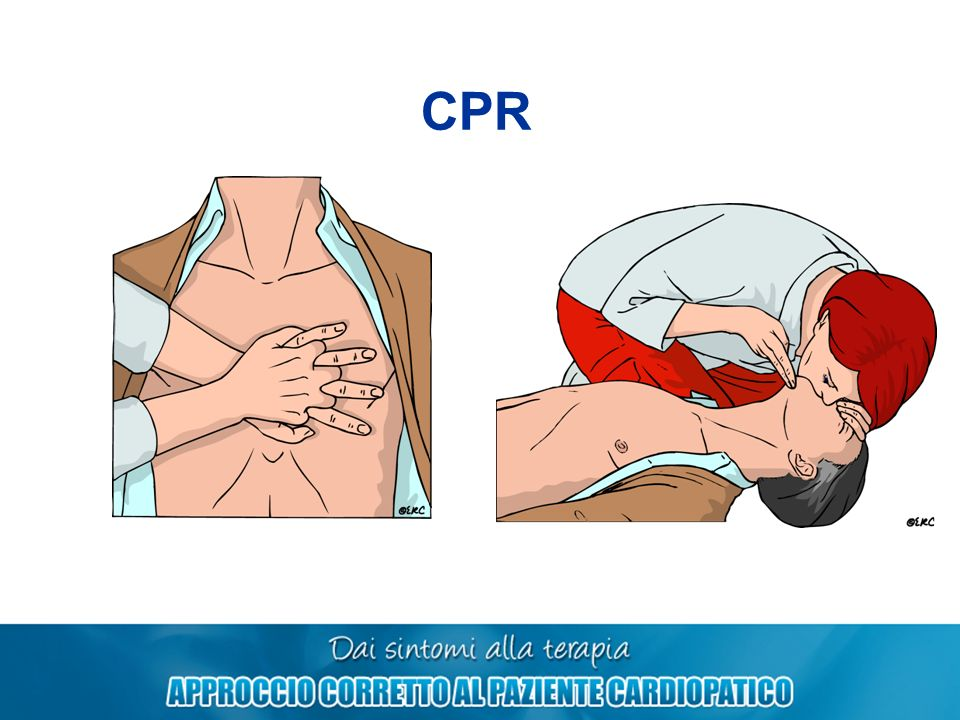 CPR 30 2