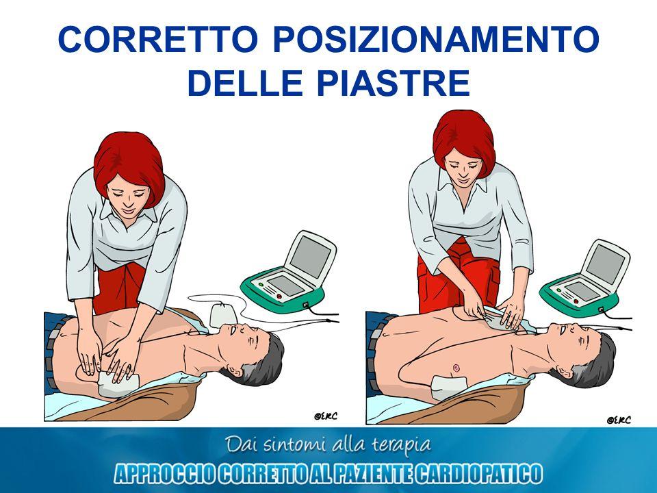 CORRETTO POSIZIONAMENTO DELLE PIASTRE