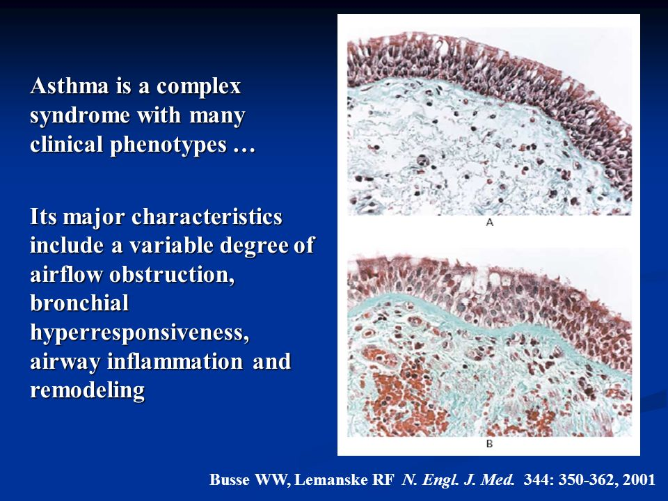 Asthma is a complex syndrome with many clinical phenotypes …