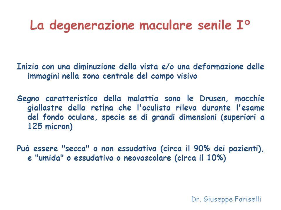 La degenerazione maculare senile I°